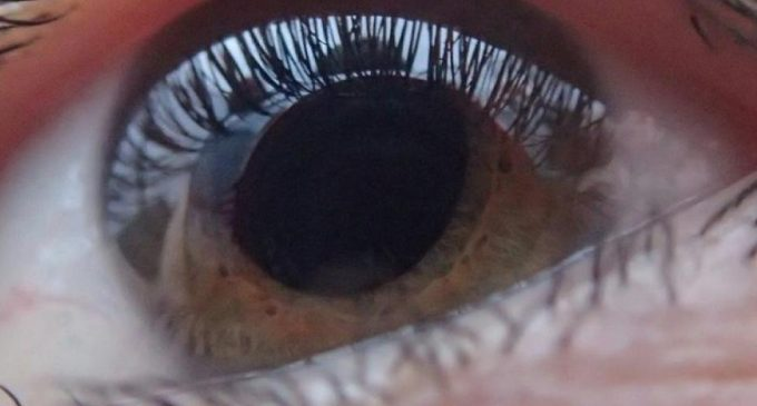FDA Gives Positive Review Of Aerie's Experimental Glaucoma Drug