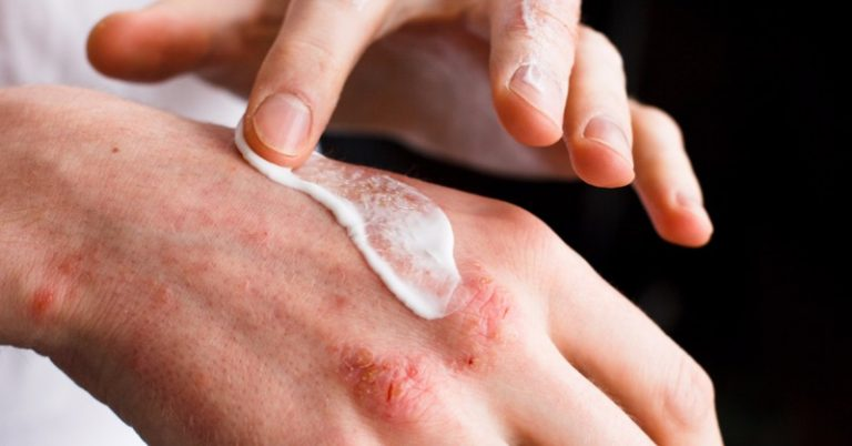 Actelion Gets Eu Approval To Launch A Treatment For A Rare Skin Cancer Biopharma Business